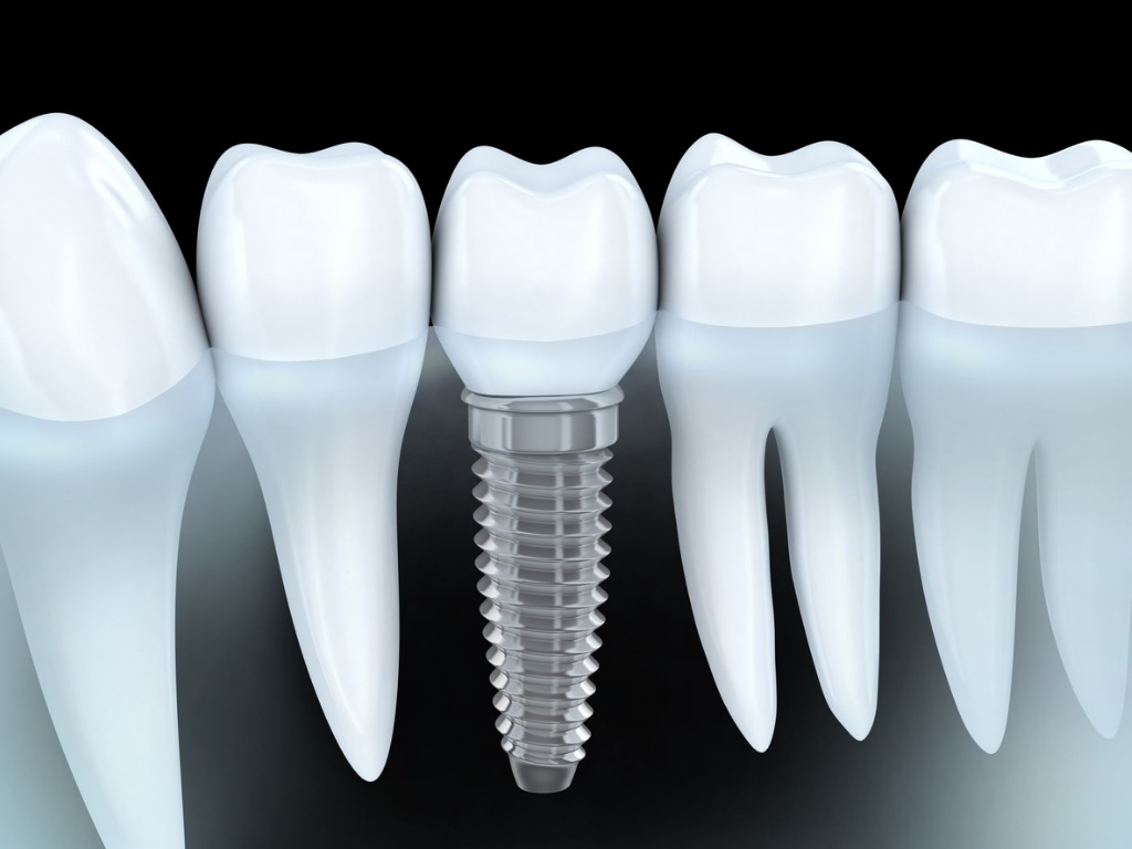 dental-implant-picture-id476857516Impl